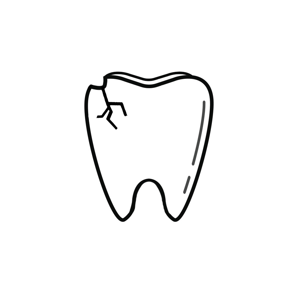 Dentist in West Allis | I Chipped a Tooth! What Can I Do?